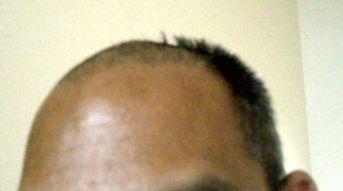 Going Bald